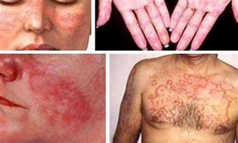 Sß Giáo Dåc Hà Nùi Triệu Chứng Bệnh Lupus Ban đỏ