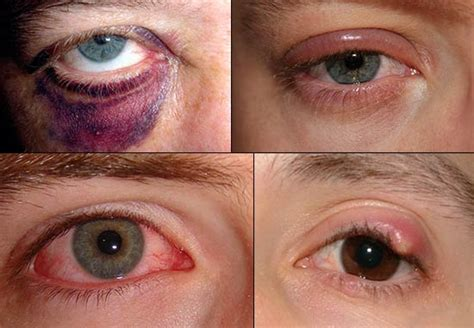 eye problems home remedies for simple eye problems
