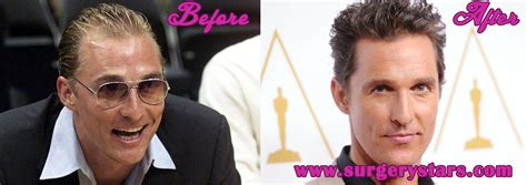 celebrity hair growth secrets matthew mcconaughey hair before after pictures