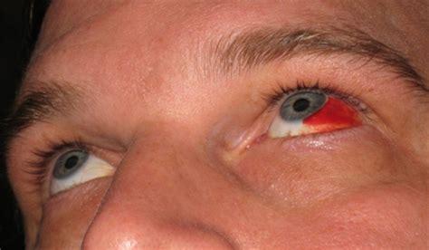 blood in s eye dave s list 187 blood vessel burst in the eye