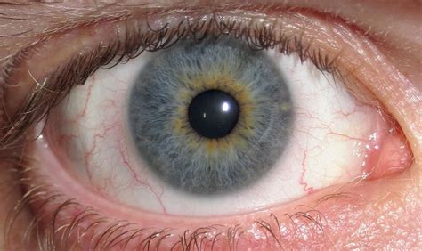 eyeball tattoo infection model gets purple eyeball tattoo which goes terribly wrong