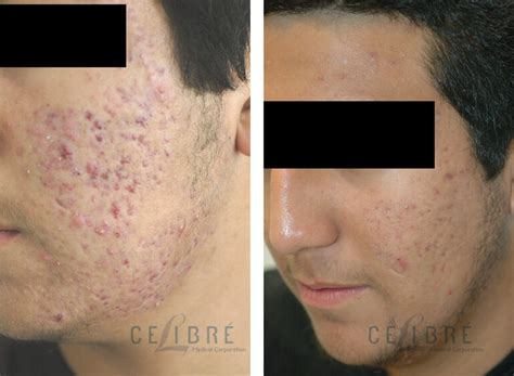 acne scars laser removal treatment before after pictures 6