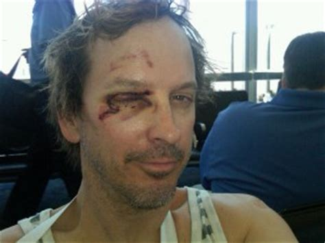 Phil Laak OK After Major ATV Accident