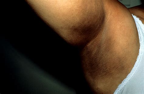 imagenes de axilas oscuras biobook leaf what hormones are secreted by the anterior
