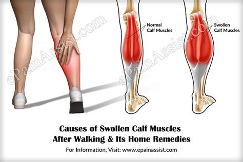 calf pain after c section image gallery walking muscles