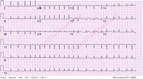 atrial fibrillation with rvr 3 learntheheart
