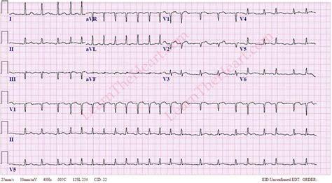 atrial fibrillation with rapid ventricular rate exle 3