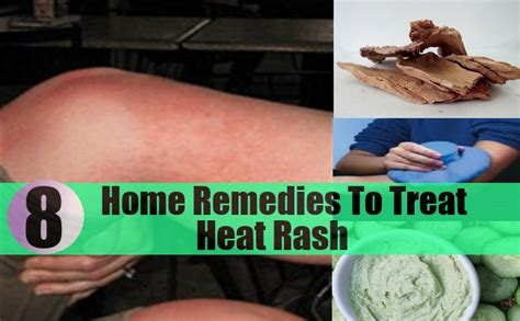 8 excellent home remedies to treat heat rash