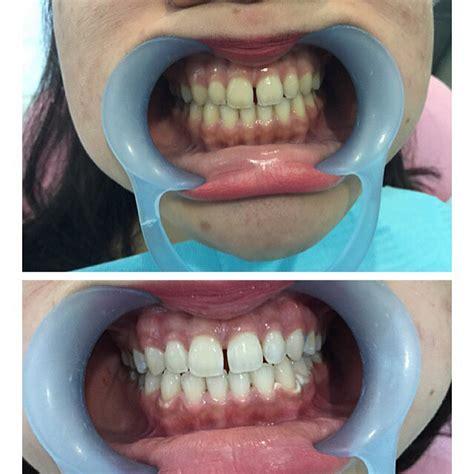 Perawatan Pemutihan Gigi pemutihan gigi