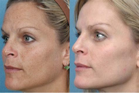 does micro needling work results before and afters and