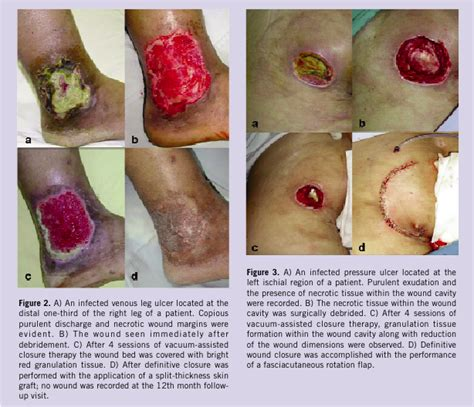 wound bed description the efficacy of topical negative pressure in the