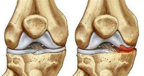 meniscopatia degenerativa interna dolor en las rodillas