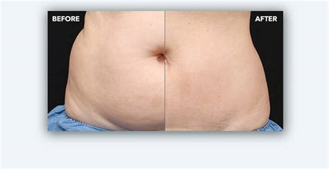 Coolsculpting Sweepstakes - fat freezing fat reduction procedure coolsculpting