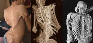 Weird and strangest medical conditions that are so rare you won t