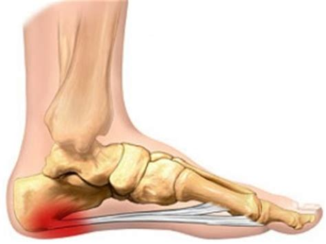preventing plantar fasciitis arkansas sports med