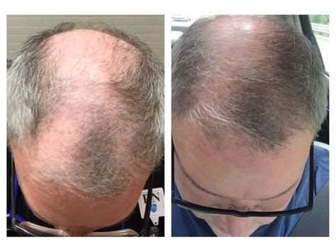 hair transplant innovations non surgical hair restoration a new results based