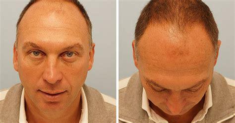jobs in hair transplant technicianjobs london david platt hair transplant former manchester city