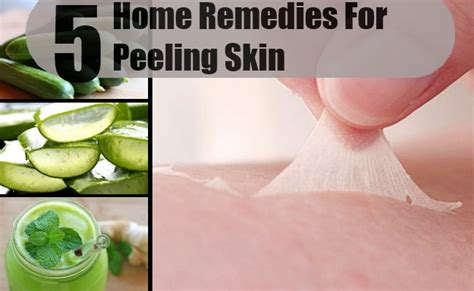 peeling skin home remedies treatments and cure