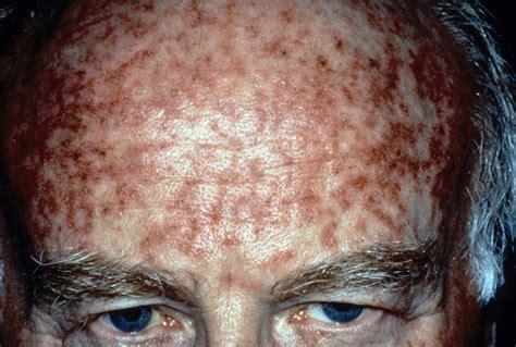 tattoo cover up keratosis pilaris do tattoos cover keratosis pilaris