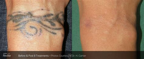 tattoo removal surrey laser removal total laser center inc
