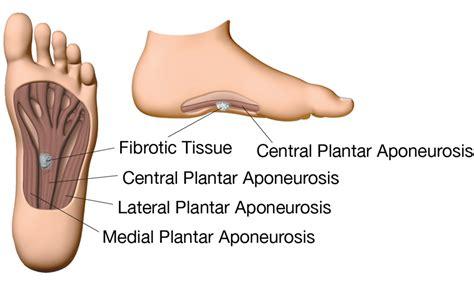 Planter Fibroma by Plantar Fibromatosis