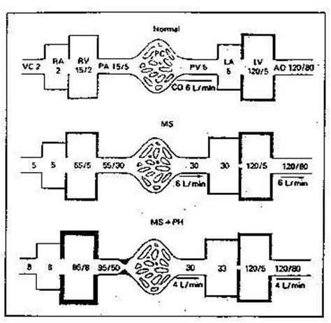 pathophysiology of leptospirosis diagram induce abortion pathophysiology loss of appetite