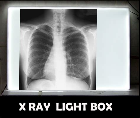 x ray light box for sale index of images