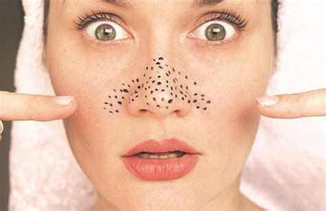 tips menghilangkan komedo  wajah secara alami