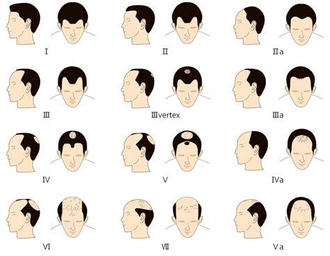 pattern of hair loss male hair baldness patterns aga androgenetic alopecia