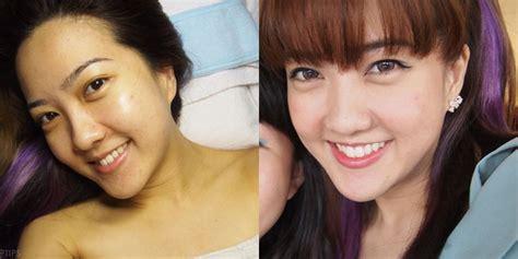 Wajah Shinzui wajah gadis cantik ini rusak setelah vemale