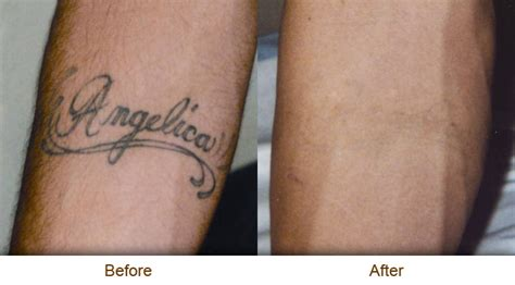 best way to remove a tattoo tattoos removal the best way n1achraf