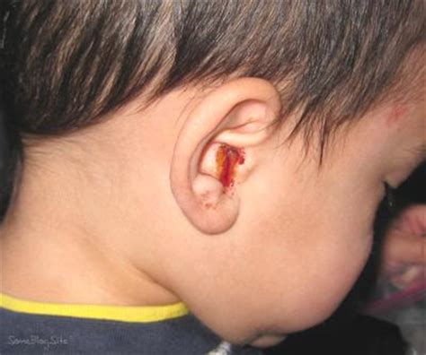ear infection symptoms home remedies for ear infection causes symptoms and treatments