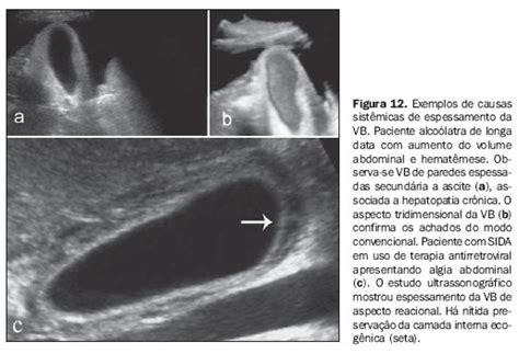 espessamento parietal da vesicula biliar  exame