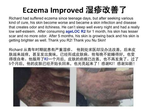 Suplemen Ageloc R2 severe eczema for many years improved after taking ageloc r2 ageloc r2