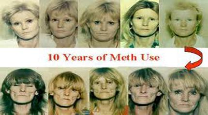 Meth Detox Information by The Gallery For Gt Heroin Addicts Before And After
