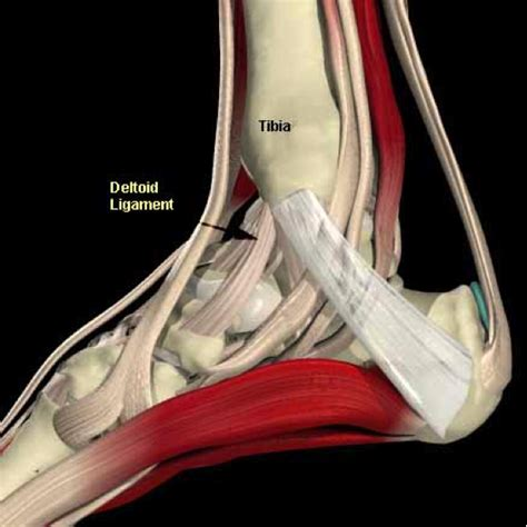 Interior Ankle Sprain by Ankle