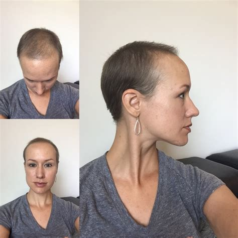 hair growth rate after chemo normal hair growth rate after chemo hair regrowth after