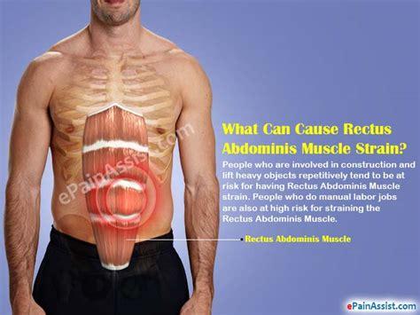 rectus abdominus strain