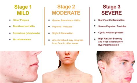 Skincare For The Treatment Of Acne by What Is Acne Best Treatment For Acne Causes Dermatologia