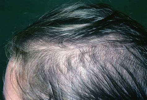 thin hair scalp hurting yeast infection scalp symptoms guide