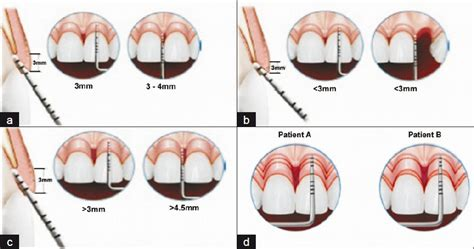 sextant meaning in dentistry biologic width and its importance in periodontal and