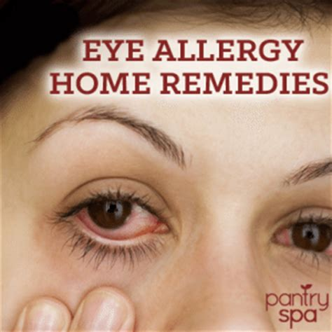 eye allergies remedies for itchy watery