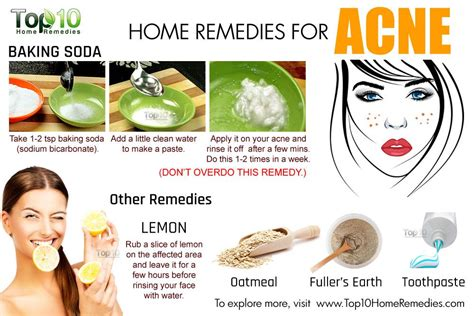 12 Best Home Remedies For Pimples by Image Gallery Home Remedies For Acne