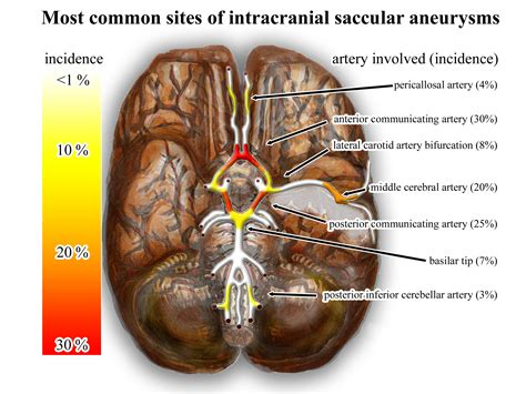 tattoo infection icd 10 infectious intracranial aneurysm