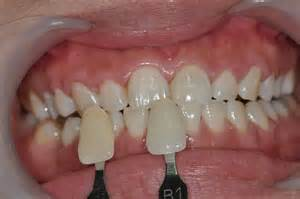 a1 tooth color cases of in office bleaching 171 prestige dental care