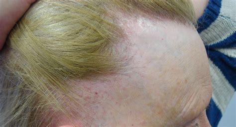 Frontal Fibrosing Alopecia Treatment | frontal fibrosing alopecia treatment