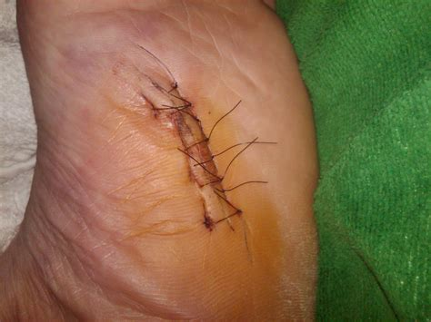 ledderhose disease with surgery plantar