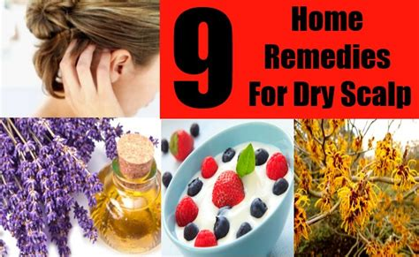 9 home remedy for scalp treatments cure
