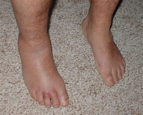 sprained ankle sprained ankle flickr photo