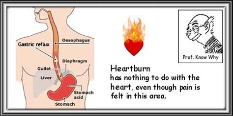 is heartburn a symptom of esophageal most cancers cures